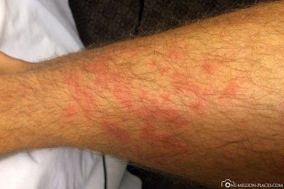 Ausschlag als Reaktion auf die Antibiotika
